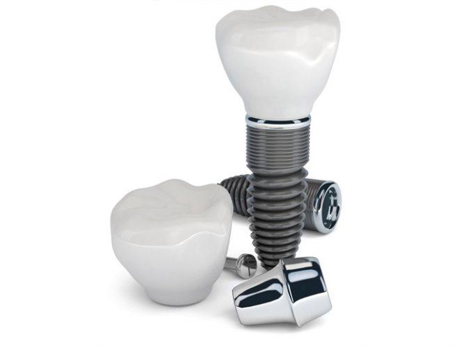 Implantologija i oralna kirurgija
